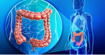 Câncer de intestino - Por Dr Fabio Atui - Cirurgia do Aparelho Digestivo e Coloproctologista