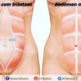 Diástase reto abdominal - Por Dr Fabio Atui - Cirurgia do Aparelho Digestivo e Coloproctologista